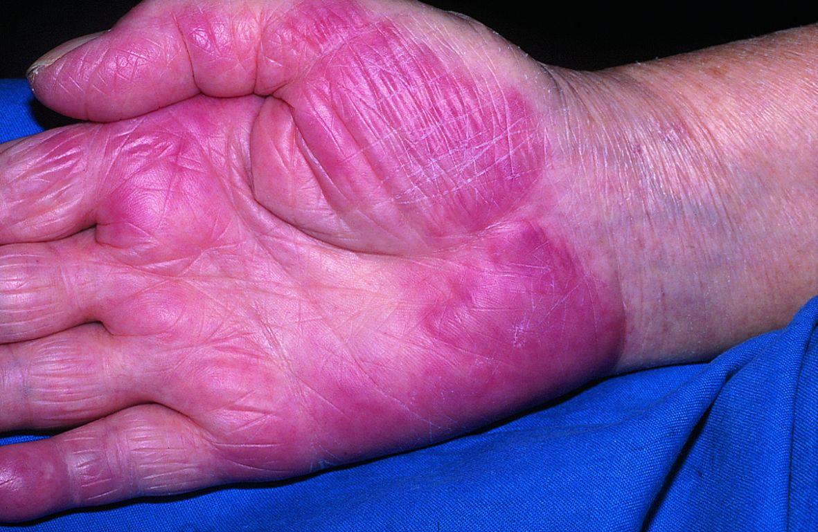 Gambar kulit infeksi